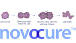 NovoCure wins expanded indications for Optune brain tumor-zapping device